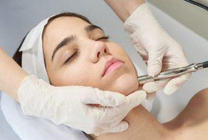 Microdermoabrasión para cicatrices